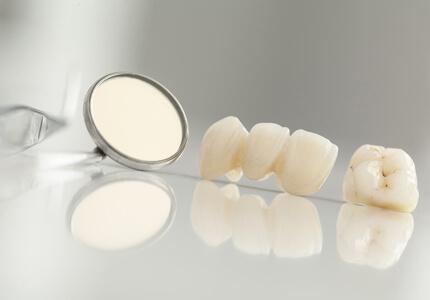 dental bridges treatment in glendale & peoria az