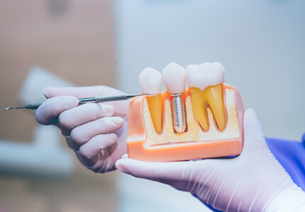 dental implants look like your natural teeth