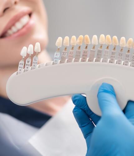 affordable dental veneers glendale & peoria az